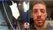 """Jong koppel wordt aangemaand om te stoppen op pechstrook, man (28) wordt gebroken neus geslagen: """"We dachten eerst dat het agenten waren"""""""