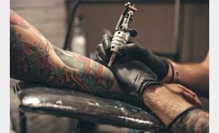 Man loopt zware brandwonde op bij verwijdering tattoo: zaakvoerder voor rechter