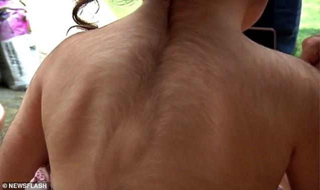 Daar is het weerwolfsyndroom: kinderen krijgen per ongeluk haargroeimiddel tegen reflux