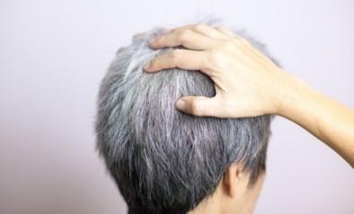 Het is bewezen dat je grijs haar kan krijgen van stress