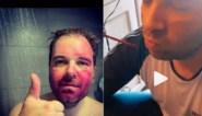 """Dochter beschildert het gezicht van Niels Albert, tot jolijt van mama: """"Raap me op!"""""""