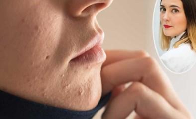 Last van 'maskne', acne veroorzaakt door het dragen van een mondmasker? Zo komt dat en dit kan je eraan doen