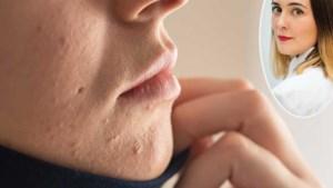Hoe komt het en wat kan je eraan doen? Eerste hulp bij 'maskne', acne veroorzaakt door het dragen van een mondmasker