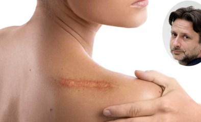 """""""Hoe kan ik ooit weer vrijen met zo'n grote littekens?"""" Seksuoloog Alexander Witpas geeft antwoord"""
