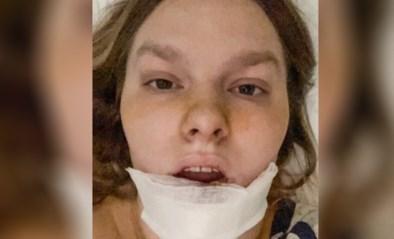 """Uitstap wordt nachtmerrie nadat hond onderlip van Lejla (20) afbijt: """"Helft van haar gezicht is weg"""""""