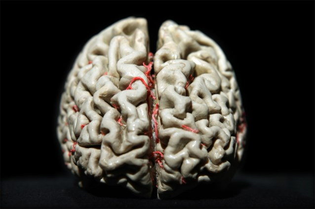 Genetische link tussen gelaatstrekken en de vorm van onze hersenen