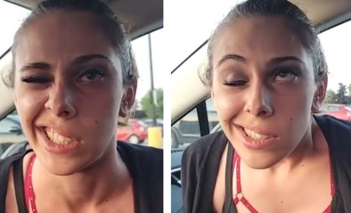 """Vrouw kan helft gezicht niet meer bewegen na verdoving bij tandarts: """"Ik weet niet of je lacht of huilt"""""""